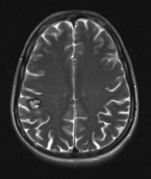 RMN en la que se observa malformación cavernosa cerebral en la región parietal derecha.