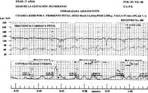 El valor de la FCF basal fue de 130 latidos; a la hora 0:43 1/2 se produjo un Dip Tipo ii con amplitud de 24 latidos y decalage de 4s y otro a las 0:48 con amplitud de 26 latidos y decalage de 24s; la reserva de oxígeno fetal fue baja; las aceleraciones tuvieron una amplitud promedio de 10 latidos.