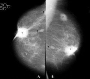 Lesion BIRADS 5. Proyección cráneo-caudal (A) y proyección oblícua mediolateral (B) de una mama, con una lesión (1) nodular, retroareolar, de márgenes espiculados, de alta densidad, con retracción del pezón y calcificaciones irregulares y heterogéneas asociadas. Se identifican otras dos lesiones, la (2), de similares características, localizada en el cuadrante supero-externo (no se visualiza en su totalidad en la proyección cráneo-caudal). La lesión (3) es una lesión satélite de la 1. Se trata de un carcinoma multifocal.