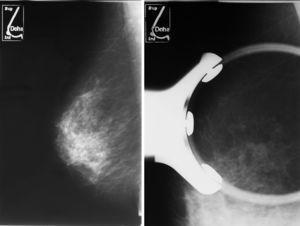 Microcalcificaciones sospechosas en CSE de mama derecha.