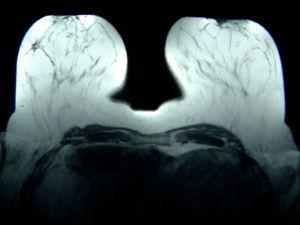 RMN mamaria: en CSE de mama derecha nódulo irregular de 13mm de diámetro máximo que parece corresponder al área biopsiada.