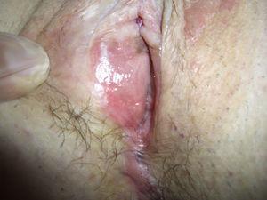 Psoriasis de vulva: afectación del introito vaginal.