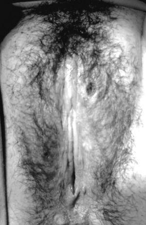 Lesión ulcerada en el pubis.