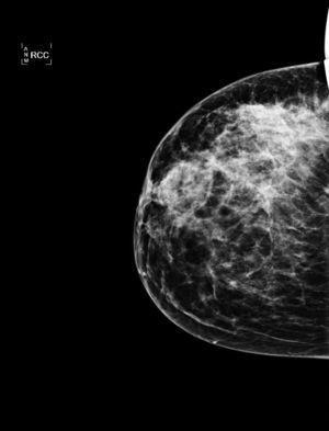 Mamografía: se observa un aumento difuso de la radiodensidad, con claro incremento de la trabeculación, preferentemente a nivel de los cuadrantes externos, más focalizada en el cuadrante supero-externo. También afecta al plano cutáneo, preferentemente a nivel del complejo aréola-pezón, el cual engrosa y retrae.
