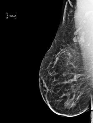 Mamografía: el aumento de densidad a nivel de cuadrante supero-externo de la mama derecha ha disminuido en probable relación con la resolución de su mastitis granulomatosa.