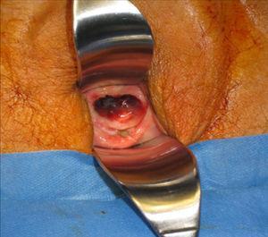 Lesión pigmentaria a nivel de 1/3 medio de la vagina.