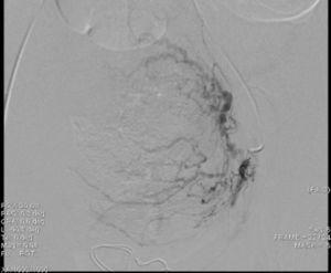 Con manejo de guía y catéter se canaliza la arteria hipogástrica izquierda, su división anterior y se administra contraste para observar la vascularización de la arteria uterina.
