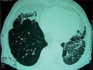 Caso 1: corte axial de 2 mm de grosor con técnica de alta resolución en que se observan, en la región subpleural del lóbulo medio y el lóbulo inferior izquierdo, áreas de consolidación con densidades en «vidrio deslustrado» y bronquiectasias en el lóbulo inferior izquierdo.