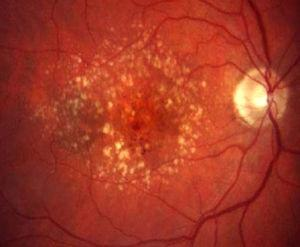Degeneración macular asociada a la edad atrófica con drusas y alteraciones pigmentarias en el área macular.