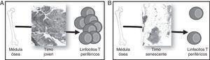 Involución del timo y generación de linfocitos T (LT) periféricos. Los precursores hematopoyéticos migran de médula ósea y colonizan el timo, donde se comprometen con el linaje T, maduran y finalmente son vertidos a sangre periférica. A) Un timo joven, con un gran porcentaje de epitelio timico (TES) es capaz de madurar un alto número de LT. B) Un timo senescente, con el TES atrofiado, solo puede madurar LT en los islotes linfoepiteliales, por lo que su aporte timico se ve en gran parte disminuido.