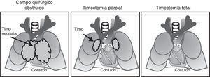 Posición anatómica del timo. En la figura se representa la necesidad de la timectomía para la corrección en enfermedades cardiacas congénitas y los diferentes procedimientos utilizados.