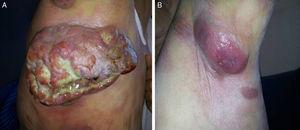 A) Masa axilar derecha gigante con datos de necrosis y sobreinfección. B) Lesión tumoral incipiente axilar izquierda.