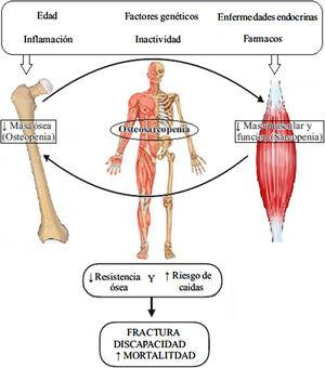 Fisiopatología de la osteosarcopenia. Adaptada de Kawao et al.30.
