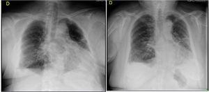 Cambio radiológico en paciente tratada con ozono rectal (cinco sesiones de tratamiento), según escala de Taylor. Radiografía de tórax, 2 de mayo 2020: calcificación de prótesis mamarias. Disminución de volumen del pulmón izquierdo. Importante condensación parenquimatosa en el LII. Infiltrados intersticiales alveolares parcheados afectando al resto de ambos pulmones, quedando una pequeña zona respetada, probablemente hiperinsuflado en el vértice izquierdo. Engrosamiento pleural bilateral. Escasos cambios con respecto a la radiografía previa realizada el día 19 de abril. Sugerente de neumonitis por COVID-19. Grado 5. Radiografía, 6 de mayo 2020: neumonía bilateral. Marcada mejoría con respecto a controles previos. Pulmón derecho: Se mantiene un infiltrado alveolar e intersticial en pulmón derecho, especialmente en lóbulo inferior con engrosamiento pleural adyacente. Pulmón izquierdo ha mejorado considerablemente el infiltrado alveolar del lóbulo inferior, la pérdida de volumen y el componente de engrosamiento pleural. Persiste la afectación intersticial, fibrosis y engrosamiento pleural. Grado 3 moderado.