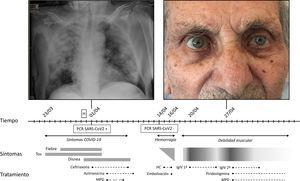 Cronograma del caso. H: ingreso hospitalario; HC: hemoconcentrado; IgIV: inmunoglobulinas intravenosas; MPD: metliprednisolona.