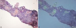 A)Biopsia renal (hijo). Parénquima cortical con depósito glomerular masivo de sustancia amiloide teñida con rojo Congo. B)Parénquima cortical con depósito glomerular masivo de sustancia amiloide observada con luz polarizada. Destaca también la fibrosis y la inflamación intersticial (×40).