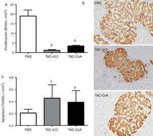 Proliferación (a) (b) y apoptosis (c) de las células β. Se representa la media ± DE. Las flechas (b) muestran los núcleos BrdU positivos para cada uno de los tratamientos. a: TAC-d12 vs PBS p = 0,009. b: TAC-CsA vs PBS p = 0,001 y vs TAC-d12 p = 0,003. c: TAC-d12 vs PBS p = 0,172. d: TAC-CsA vs PBS p = 0,311 y vs TAC-d12 p = 0,824.