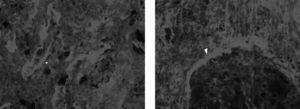 Inmunofluorescencia. A. Inmunofluorescencia para IgG con positividad granular en las membranas basales de los túbulos y en la capsula de Bowman. El glomérulo es negativo (× 200).