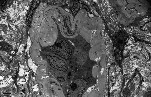 Microscopía electrónica en la que se observa un túbulo atrófico con membranas basales gruesas que contienen abundantes depósitos electrón densos (×5.000).