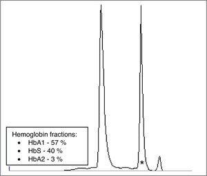 Hemoglobin electrophoresis (cellulose acetate): amino acids substitution in hemoglobin variants alter charge and subsequently hemoglobin's mobility pattern. Presence of an abnormal hemoglobin variant in Z5 region, compatible with HbS (*).