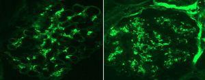 Inmunofluorescencia con anticuerpos conjugados que muestran captación mesangial granular difusa para C3 e IgA