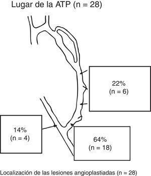 Tratamiento radiológico de las FAV-RC en prediálisis.