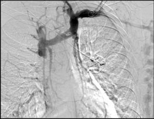 Imagen de flebografía en la que se objetiva trombosis de cava e importante circulación colateral por el sistema ácigos.