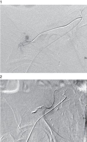 Arteriografía del injerto renal con extravasado de contraste en rama distal. Embolización selectiva de rama distal de arteria del injerto con desaparición del extravasado.