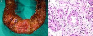 A) Imagen intraoperatoria de la pieza resecada. Se ha realizado la apertura del asa de intestino delgado resecada y puede observarse la ulceración origen del sangrado. B) Imagen histológica con H-E×400. Inclusiones citomegálicas (flechas) en el interior de las células intestinales deplecionadas de moco.