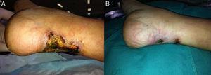Evolución de las lesiones de calcifilaxia tras paratiroidectomía. Al inicio (A) y después de 2 meses (B) de tratamiento con TS.