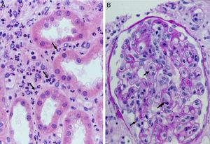 Acute humoral rejection. (A) Capillaritis. Presence of inflammatory cells (polynuclear leukocytes) in peritubular capillaries (H&E). (B) Glomerulitis. Presence of inflammatory cells (macrophages) in glomerular capillaries (PAS).