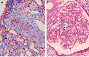 (A) Transplant vasculopathy. Myointimal proliferation with vascular occlusion (Masson trichrome). (B) Transplant glomerulopathy. Disseminated duplication of the glomerular basement membrane (PAS).