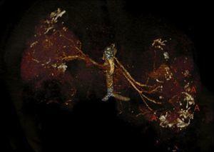 Angio-TCMD abdominopélvica, reconstrucción 3D (volume rendering) que muestra la multiplicidad de aneurismas (A).