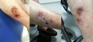 Miembro inferior derecho: izquierda: antes del tratamiento; centro: tras el tratamiento intravenoso; derecha: tras el tratamiento tópico.