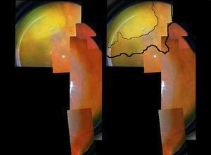 Lesión nasal superior con bordes más nítidos e inicio de la pigmentación de las zonas en resolución.