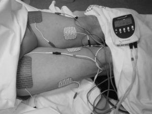 Electro estimulación neuromuscular (EM) de los músculos cuádriceps de ambas extremidades inferiores. Electrodos sobre el punto motor de los vientres musculares del cuádriceps (recto anterior, vaso interno y externo). Pacientes en decúbito supino, con extensión completa de los miembros inferiores y mínima flexión (15°) de ambas rodillas mediante una almohada blanda colocada en la región poplítea.