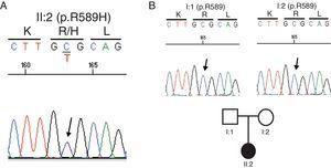 A) Sustitución de un aminoácido básico (p.R589H) arginina (Arg, R) por un aminoácido histidina (His, H) en nuestra paciente. B) Estudio de cosegregación en ambos progenitores (I:1 y I:2): ninguno es portador de la mutación R589H.