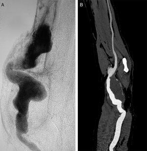 Arteriografía selectiva: A) Arterial humeral con un diámetro máximo de 6cm. B) Reconstrucción tridimensional de la angiotomografía computarizada, donde se identifica una dilatación aneurismática de la arteria humeral, con un diámetro máximo de 4,5cm y salida única por la arteria cubital.