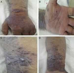 Multiple discrete, (nonulcerated, erythamatous-violaceous noduler and plaques on left forearm and hand(A,B,C,D).