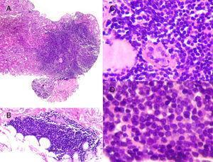 Características histológicas de los infiltrados linfoides que afectaban tanto al parénquima renal (A: H&E, ×10) como al tejido perirrenal (B: H&E, ×10). El infiltrado linfoide destruía el parénquima dejando aislados túbulos residuales con dudosas imágenes de lesión linfoepitelial (C: H&E, ×20). La celularidad era monomorfa, de pequeño tamaño, contorno nuclear irregular, con nucléolo poco evidente y sin actividad mitótica significativa (D: H&E, ×40).