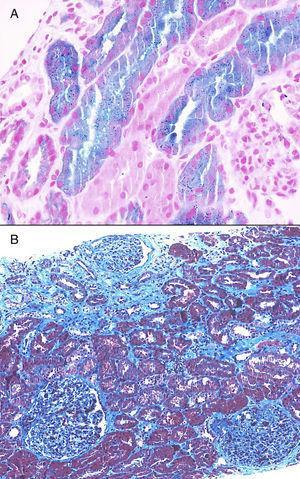 Tinción de Perls y tricrómico. Células cargadas de hemosiderina, áreas de atrofia y fibrosis.