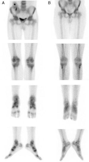 Gammagrafía ósea compatible con SDRC (A) con resolución del proceso en el control post-tratamiento (B).