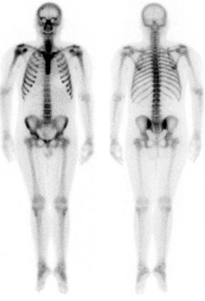 Rastreo gammagráfico óseo que muestra la existencia de un patrón metabólico relacionado con su hiperparatiroidismo.
