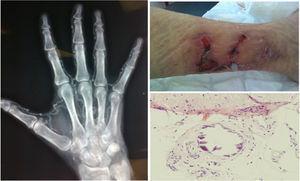 Lesión cutánea en miembro inferior secundaria a calcifilaxis (arriba derecha). Lesiones histológicas en el tejido celular subcutáneo con áreas de calcificación, algunas de ellas perivasculares, compatibles con calcifilaxis (abajo derecha). Radiografía de mano izquierda en la que se observan calcificaciones vasculares (izquierda).