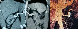 A) Arteria renal derecha sin signos de estenosis y riñón derecho de tamaño conservado. B) Arteria renal izquierda sin signos de estenosis; aneurisma de 2cm de diámetro; riñón izquierdo atrófico. C) Reconstrucción 3D del aneurisma de pared calcificada y trombosada.