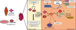 Mecanismos de daño renal por hemoproteínas.