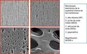 Microfotografía de la cara interna de los 4 tipos de membranas en función del tamaño de los poros: A) alta eficacia (HF); B) punto de corte medio (MCO) (Theranova®); C) alto punto de corte (HCO); D) plasmafiltro. Magnificación 60.000×.
