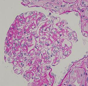 Renal biopsy (haematoxylin and eosin, ×400), showing endocapillary hypercellularity with immune cell infiltration (arrow head).