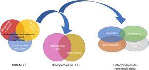 Relación entre Chronic Kidney Disease - Mineral and Bone Disorder (CKD-MBD), osteodistrofia renal (alteración ósea secundaria a la presencia de enfermedad renal crónica [ERC]) y OP (relacionada con la uremia o la edad y sexo de los pacientes, entre otros factores). La resistencia ósea viene determinada no solo por la densidad mineral ósea sino también por la calidad del hueso, expresado por sus determinantes94,151. Aunque algunos autores utilizan el término OP «urémica»17, no debemos olvidar a la ERC no terminal, pudiendo integrarse dentro del complejo CKD-MBD al poder condicionar su empeoramiento. Adaptada de Moe151 y West et al.94.
