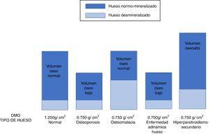 En la imagen puede apreciarse cómo distintas patologías (osteoporosis senil o por hipogonadismo, osteomalacia, enfermedad adinámica del hueso e hiperparatiroidismo secundario) pueden mostrar el mismo resultado disminuido en la medición de la densidad mineral ósea (en este ejemplo DMO=0,750g/cm2) aunque condicionado por una composición ósea (y eventual tratamiento) completamente distintos112,133.